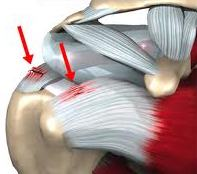 frozen shoulder chiropractic treatment